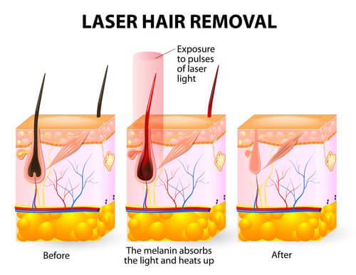 laser hair removal-img-blog