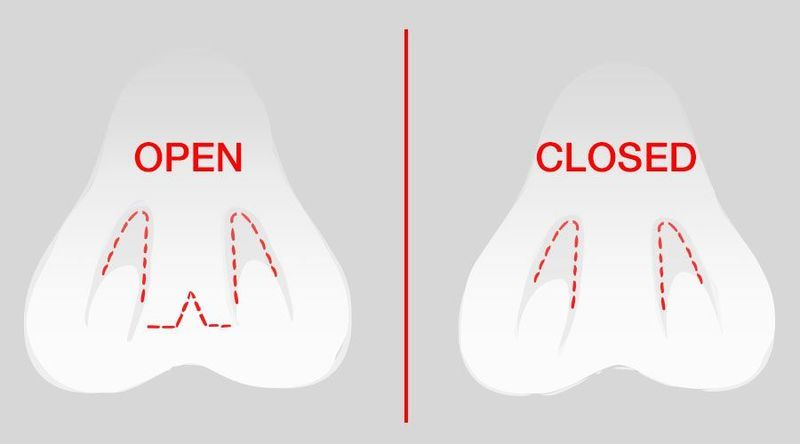 open and closed nasal incisions-img-blog