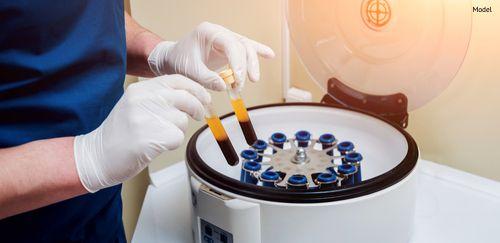 Platelet-Rich plasma preparation