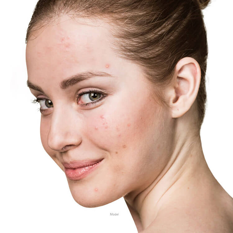 model acne scarring treatment at Careaga Plastic Surgery
