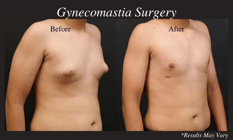 Do Men Have To Worry About Gynecomastia Scars Careaga Plastic