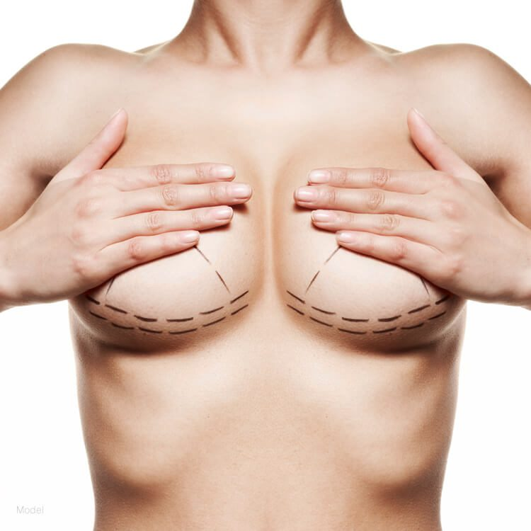 model holding both breast for measurement implant breast removal
