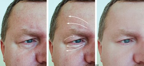 Before and after image of a man before a wrinkle-reduction treatment.