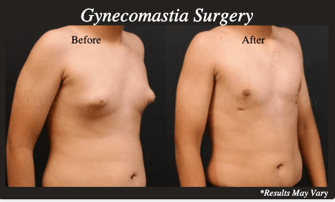 Results of male breast reduction